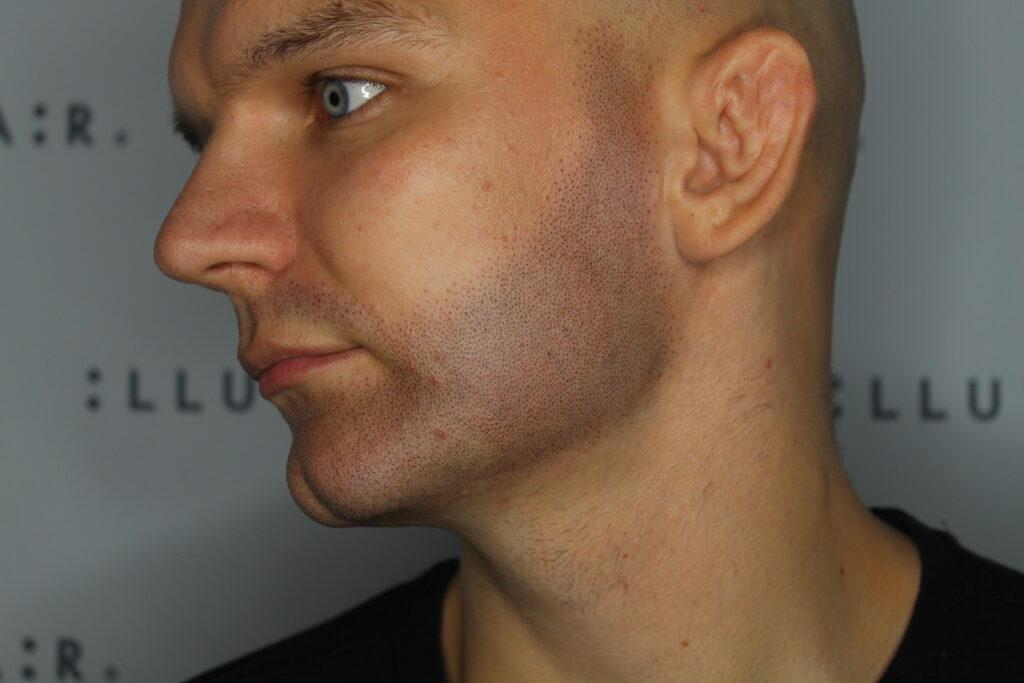 Slutresultat skægvækst behandling med SMP