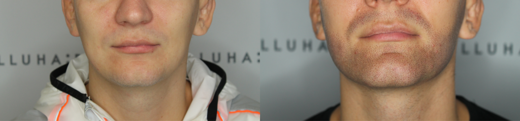 Kunde uden skæg der nu har fået illusionen af fuldt skæg efter behandling hos illuhair, før og efter billede